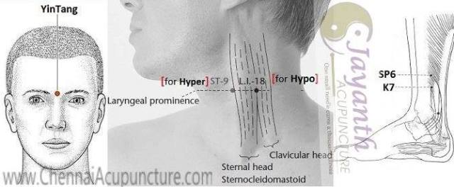 Acupuncture Points For Thyroid
