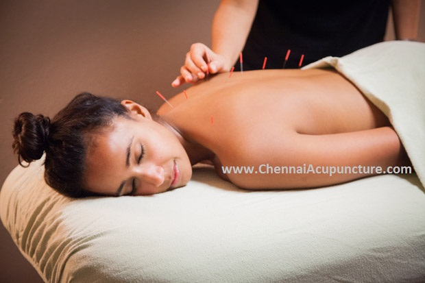 AcupunctureTreatment