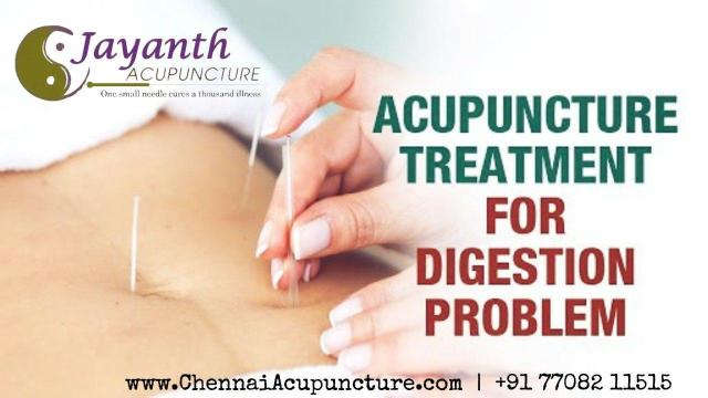 Acupuncture Treatment For Digestion Problem