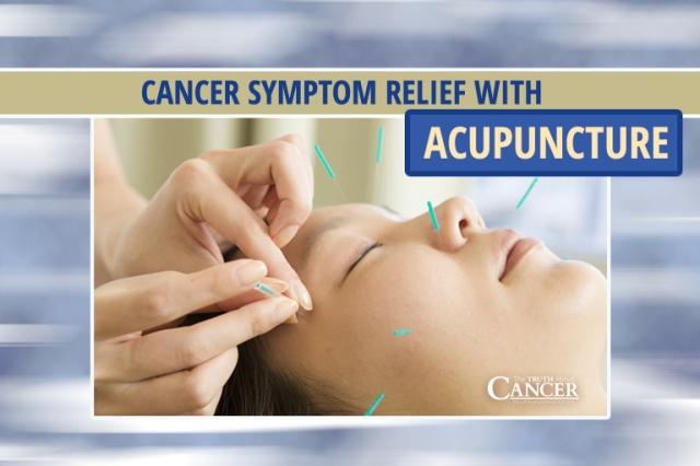 Acupuncture21C